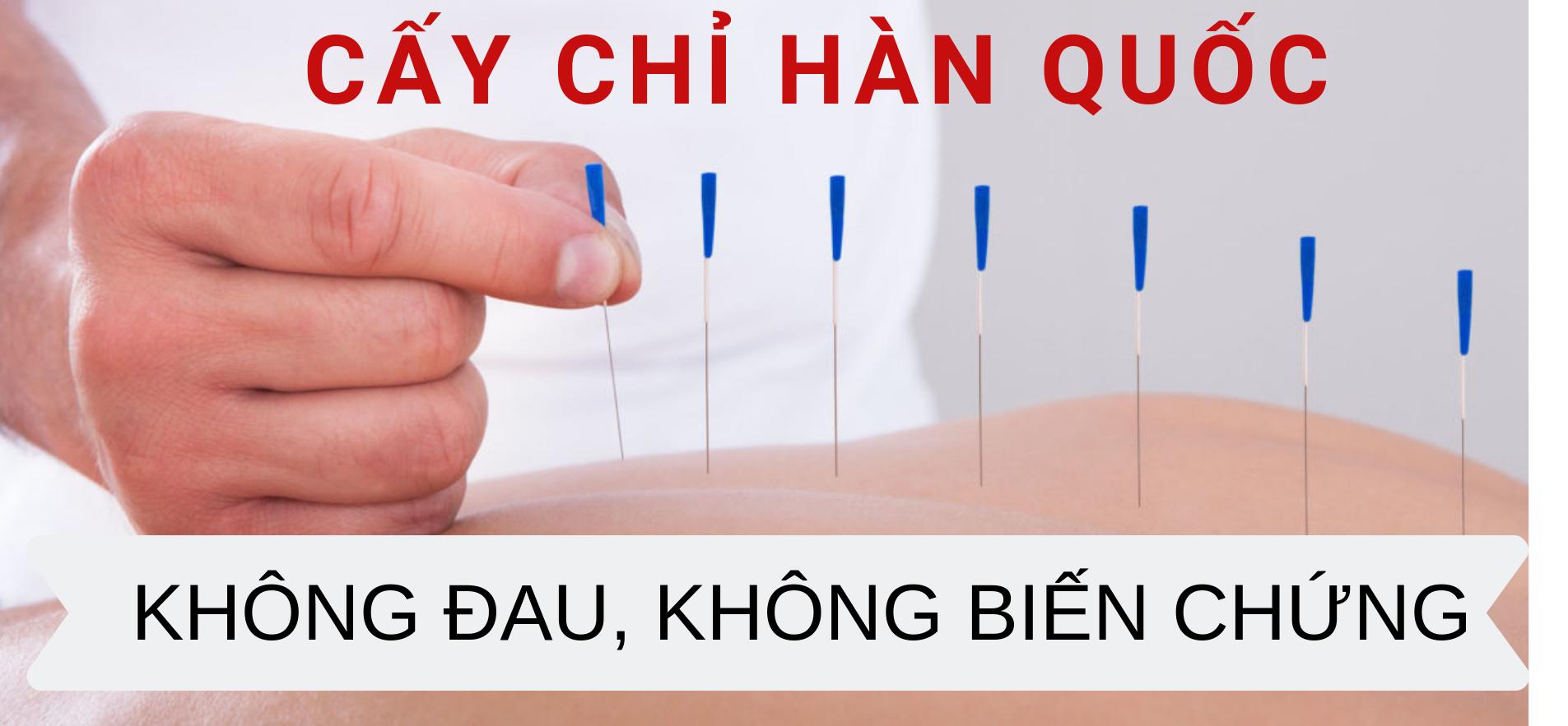 Phương pháp cấy chỉ chữa viêm mũi dị ứng